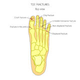 Toe fractures. Illustration (diagram) of toe fracture types Stock Photos