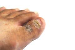 toe nail break Royalty Free Stock Photography