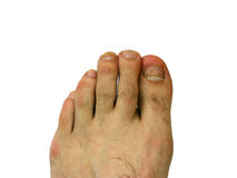 Toe nail with bruise. Bruise on toe nail of left foot Royalty Free Stock Photos