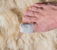 Toe operation on the big toe in the hospital. In Germany stock images