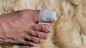 Toe operation on the big toe in the hospital. In Germany stock photo