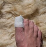 Toe operation on the big toe in the hospital. In Germany royalty free stock images