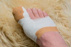 Toe operation on the big toe in the hospital. In Germany stock photos