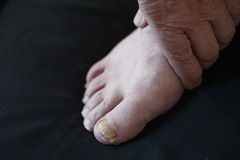 Toenail fungus on man. Man with a hand on his foot with toenail fungus stock photo