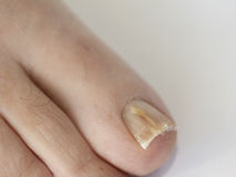 Toenail with onychomycosis Stock Photography