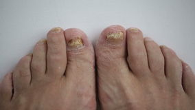 Toenails with fungal infection stock video