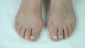 Toenails with fungal infection stock video footage