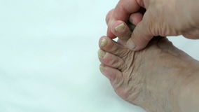 Toenails with fungal infection stock footage