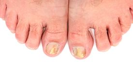 Toenails infected with fungus. The image on white background Royalty Free Stock Photo