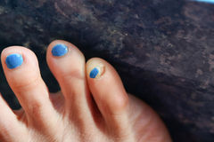 Toenails off from accident Stock Photos