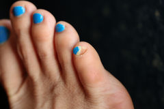 Toenails off from accident Royalty Free Stock Images