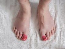 Toes возникновение после ingrown хирургии ногтя стоковое фото