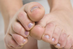Toes. Woman`s toes on two legs close-up Stock Images