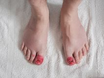 Toes appearance after ingrown nail surgery. Toes after ingrown nail surgery. Convalescent appearance without nails with stitches, disinfectant red and healing Stock Photo