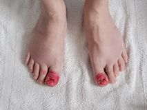 Toes appearance after ingrown nail surgery. Toes after ingrown nail surgery. Convalescent appearance without nails with stitches, disinfectant red and healing Stock Photos