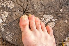 Toes of male foot infected with a nail fungus. Toes of male foot, infected with a nail fungus on a gray cracked stump covered with white mold fungi royalty free stock image