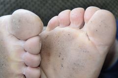 Toes. Sweet Toes on man with dirt under Royalty Free Stock Photos