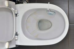 Toilet in het huis met gele vlekken van het water, schoonmakende eenheid met detergens op de rand stock afbeelding