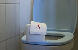 Toilet paper with blood lies on the toilet, Hemorrhoids royalty free stock photography