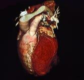 Tomografía computada del corazón fotografía de archivo
