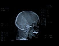 tomografię komputerową czaszki Zdjęcie Royalty Free