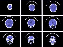 Tomografia computata del cervello Fotografie Stock Libere da Diritti
