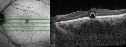 Tomografia ottica di coerenza Immagini Stock