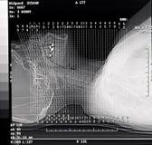 tomografia skanowania zwiadowca Zdjęcia Royalty Free