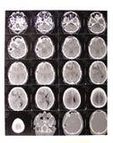 Tomografie met computer stock afbeeldingen