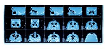 tomography максиллярного sinus компьютера Стоковое Изображение