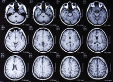 Tomography brain Royalty Free Stock Photography