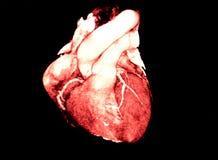 Tomography computado do coração, CT, radiologia Imagem de Stock Royalty Free