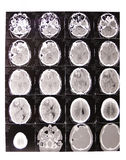 Tomography x-ray Stock Images