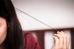 Tonårigt hår som drar oordning eller mental spänning för Trichotillomania arkivbild