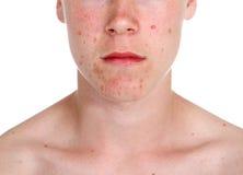 tonårs- acnepojke Royaltyfria Foton