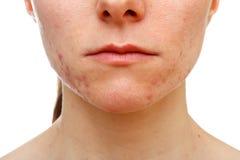 Tonårs- flicka som lider i acne Arkivfoton