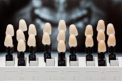 Tonalità dentali dei denti. Fotografia Stock Libera da Diritti