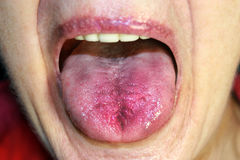The tongue is red, inflamed. Hyperemia of the mucous membrane of the tongue