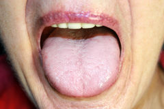 The tongue is in a white raid. Candidiasis in the tongue.  Royalty Free Stock Photo