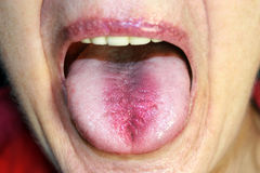 The tongue is in a white raid. Candidiasis in the tongue Royalty Free Stock Photography