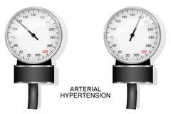 Tonometer for measuring blood pressure. Illustration of the dial of the tonometer and at normal pressure and hypertension Stock Photography