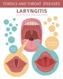 Tonsillar och halssjukdomar Peritonsillar böldtecken, behandlingsymbolsuppsättning Medicinsk infographic design royaltyfri illustrationer