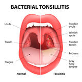 Tonsillitis bacterial vector illustration