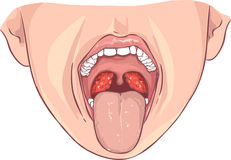 Tonsillitis bacterial Stock Photos