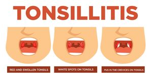 Tonsillitis red and swollen tonsils white spots royalty free illustration