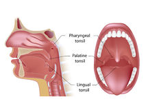 The Tonsils. Tonsils in open mouth view and midsagittal view, eps10 Royalty Free Stock Photography