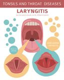 Tonsils and throat diseases. Peritonsillar abscess symptoms, treatment icon set. Medical infographic design. Tonsils and throat diseases. Laryngitis symptoms royalty free illustration
