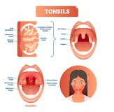 Tonsils vector illustration. Tonsillitis labeled structure diagram. stock illustration