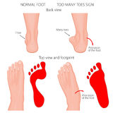 Too many toes. Vector illustration of the normal human foot and the foot with pronation or flatfoot, with hindfoot deformity. Too many toes sign Stock Photography