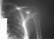 Toonde aan de film verlaten schouder van een 52 jaar oude mens met veelvoudige myeloma (MM.), de stempel uit letsels van opperarmb Royalty-vrije Stock Foto